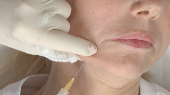 INJECTABLE SKIN RENEWAL TREATMENTS THAT STIMULATE COLLAGEN PRODUCTION