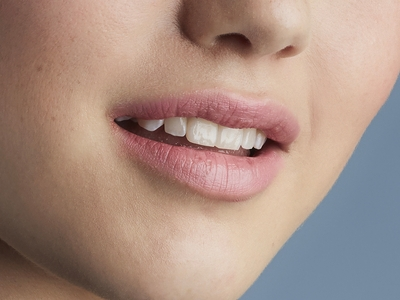 Restylane®Kysse™—a lip filler that makes your partner want to kiss you more